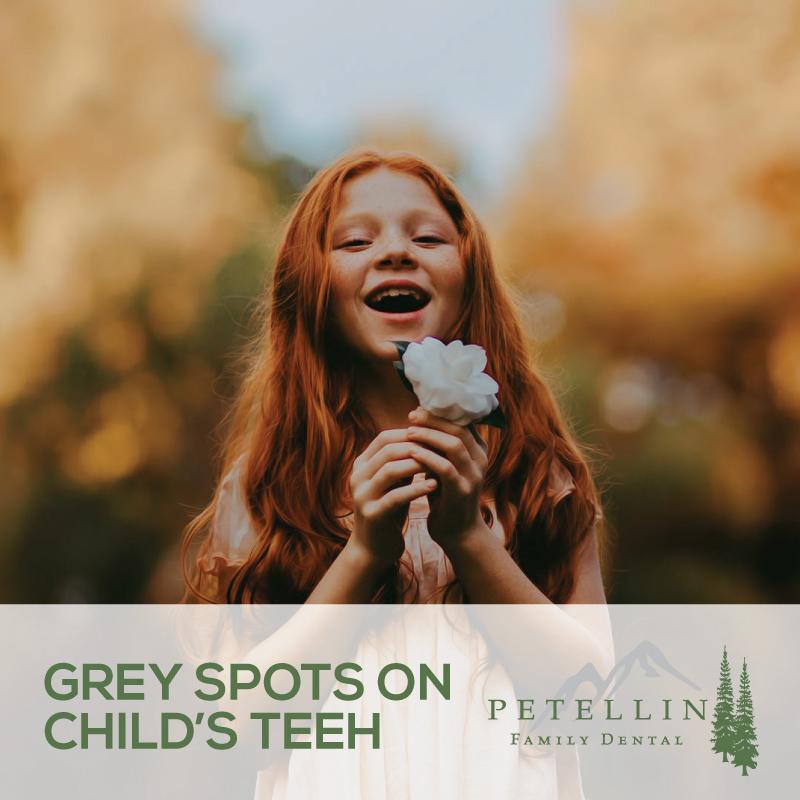 Grey-Spots-on-Childs-Teeth