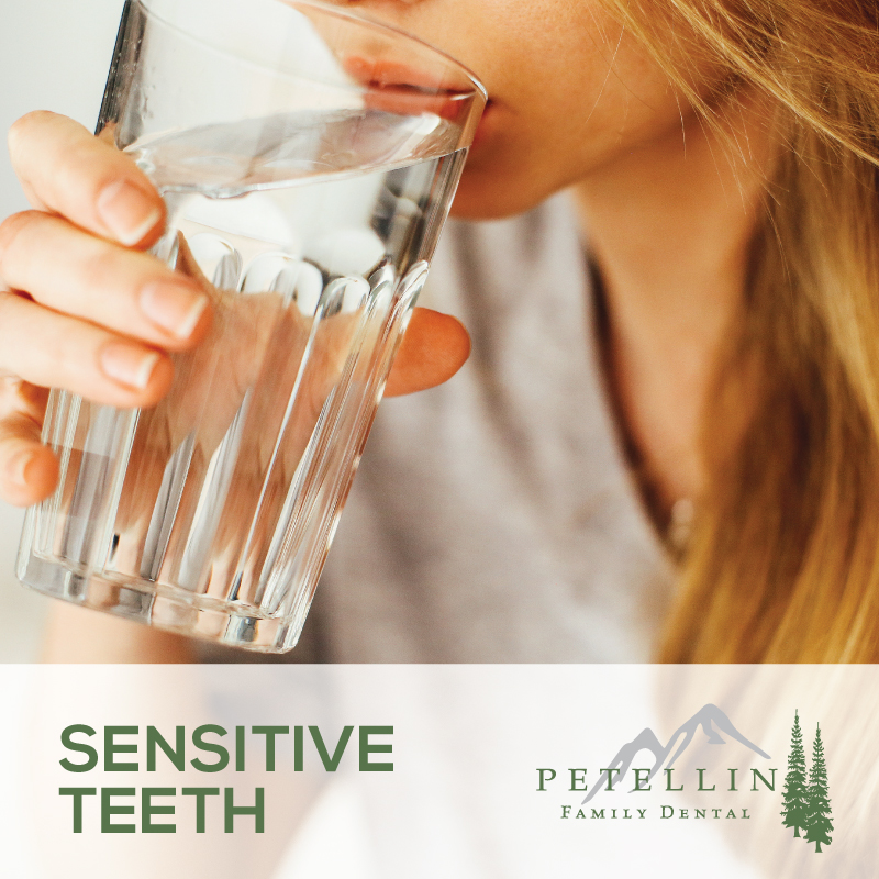 Petellin-Sensitive-Teeth