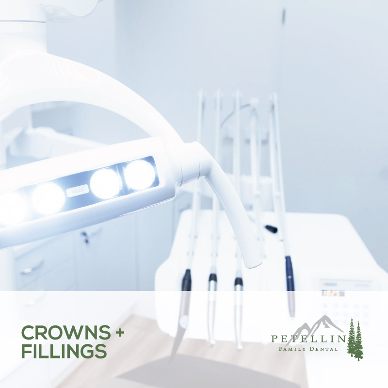 Crowns and Fillings Idaho Dental Care