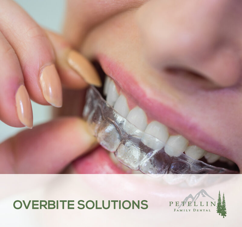 Overbite Solutions